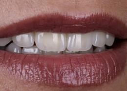 al-dente-dental-labor-sulingen-gal-img-1g