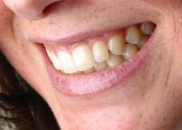 al-dente-dental-labor-sulingen-gal-img-11